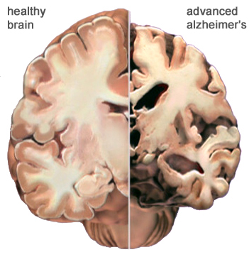 A healthy brain versus a brain with Alzheimer's/ PHOTO VIA alz.org